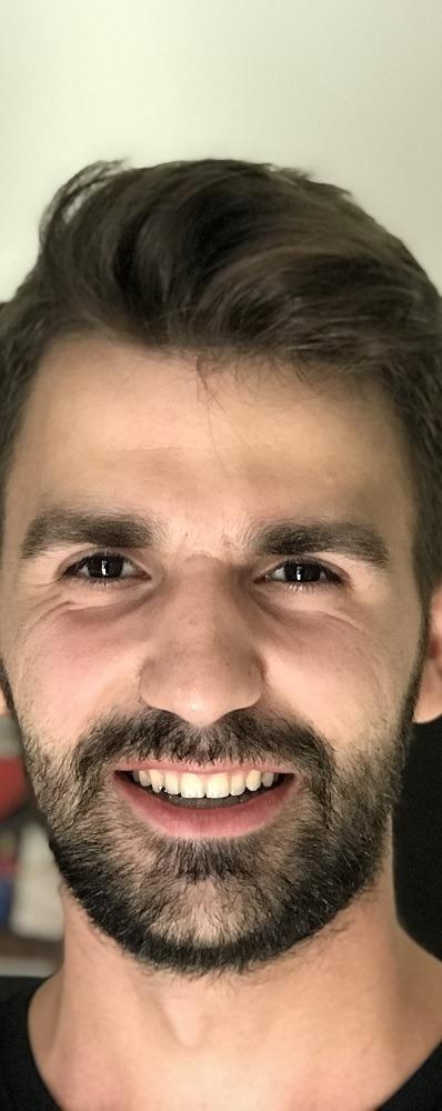Νίκος Σπυρόπουλος ορθοδοντικός για εφήβους Πύργος Ηλείας